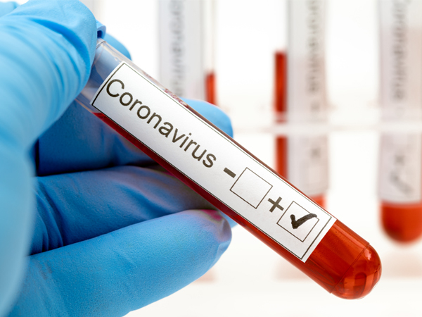 South Jersey Coronavirus (COVID-19) Developments (August 10)
